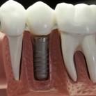 Fester Zahnersatz durch Implantate, © Fotofrank - Fotolia.com